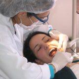 Polovina Srbije ne pere zube, više od devet odsto nema nijedan zub 4