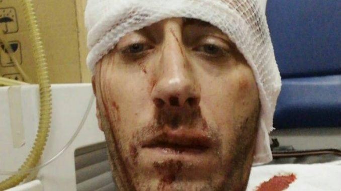 Istraga o pokušaju ubistva novinara Kovačevića nije završena 1
