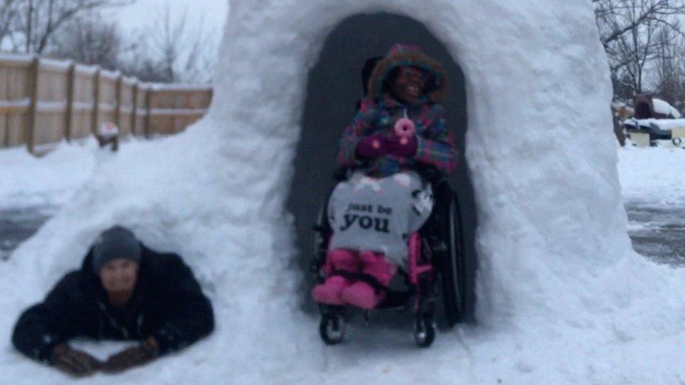 Greg je napravio iglo za ćerku sa invaliditetom
