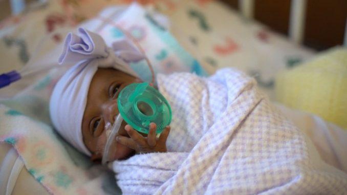 Najmanja prerano rođena beba na svetu puštena iz bolnice u Americi 2