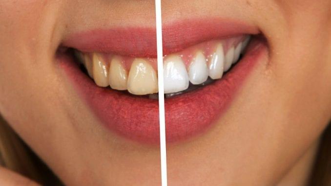 Šta zubni kamenac otkriva o navikama drevnih ljudi 3