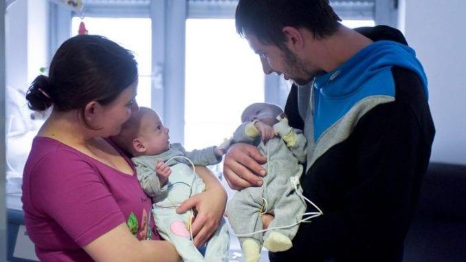 Hrvatski lekari razdvojili sijamske blizance 1