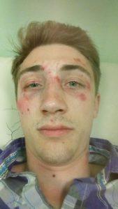 Pretučen jedan od organizatora protesta u Novom Sadu 2