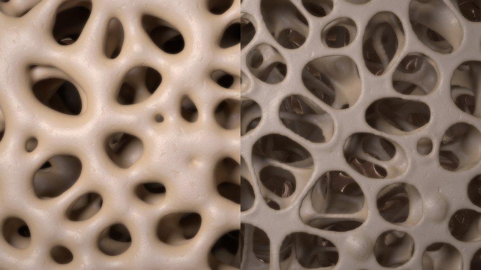 Kosti postaju slabije posle menopauze, povećava se rizik od osteoporoze
