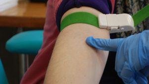 Kako izgleda tretman podmlađivanja krvnom plazmom? 2