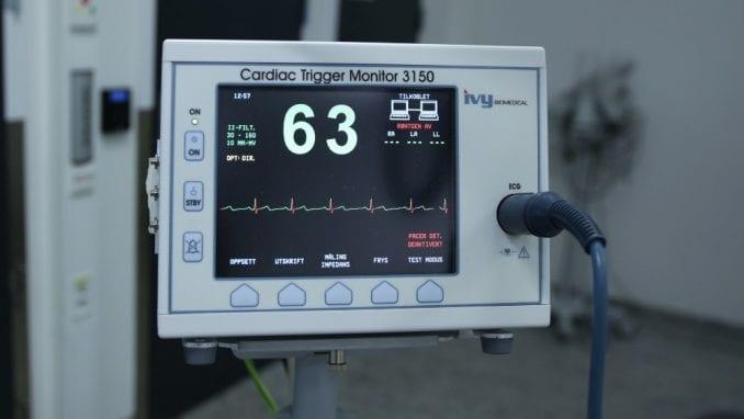 Šta sve može da otkrije ehokardiografski pregled? 1