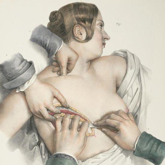 An illustration showing a mastectomy procedure, circa 1900