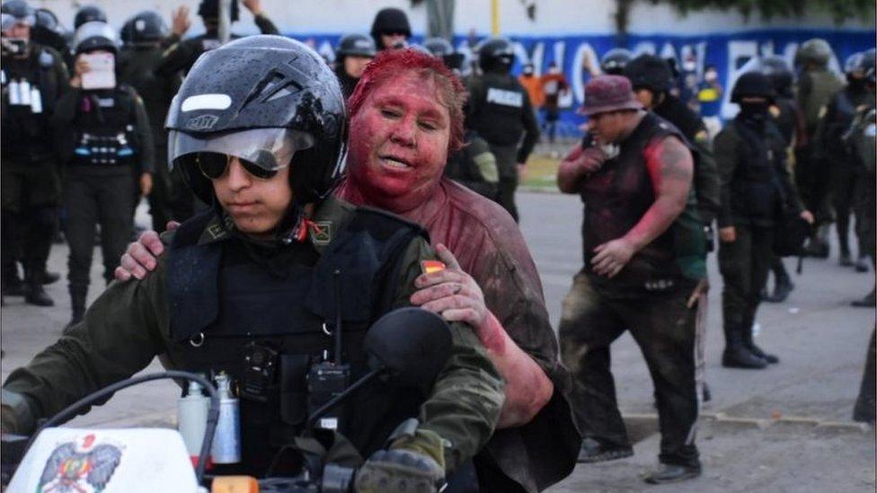 Policijac vozi gradonačelnicu u bolnicu