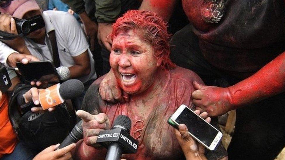 Patrisija Arse se obratila medijima nakon napada