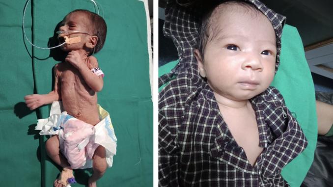 Indija: Prevremeno rođenu bebu zakopali živu - ona se sad oporavlja 2
