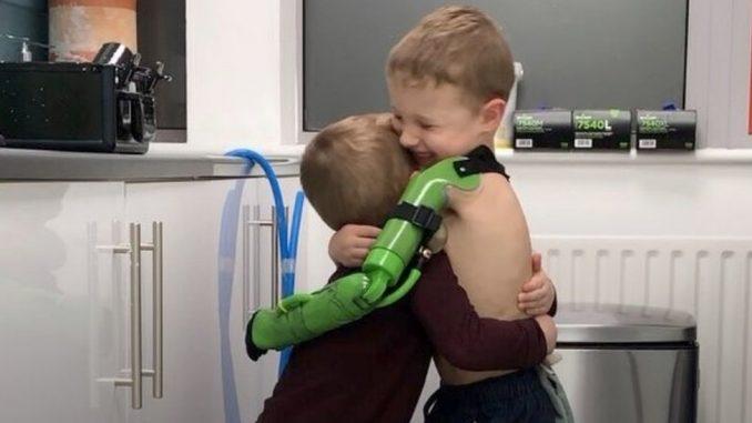 """Petogodišnjak dobio """"superherojsku"""" ruku i konačno zagrlio brata 4"""