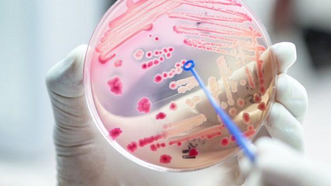 Smrt, medicina i bolnice: Svaka peta smrt u svetu je posledica sepse 2