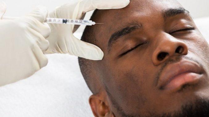 Šta treba da znaju muškarci koji koriste botoks i estetsku hirurgiju, a takvih je sve više 4