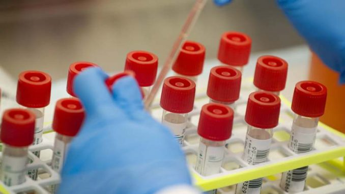 Ruski naučnici mogu do leka za korona virus za 30 dana od krvi ljudi koji su ozdravili 1