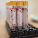 Austrijski parlament odobrio obavezne testove pre ulaska u bolnicu ili pozorište 12
