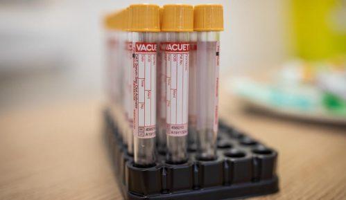 Austrijski parlament odobrio obavezne testove pre ulaska u bolnicu ili pozorište 8
