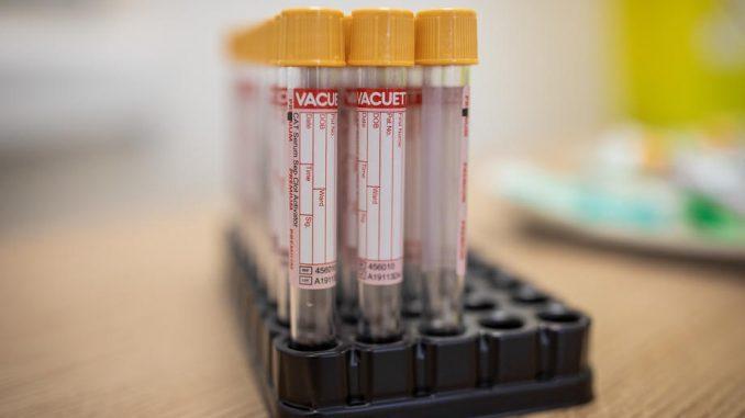 Čak 154 osobe na respiratorima, od korona virusa preminulo još 12 ljudi 1