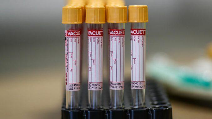 U Srbiji 6,4 odsto građana steklo imunitet na korona virus 2