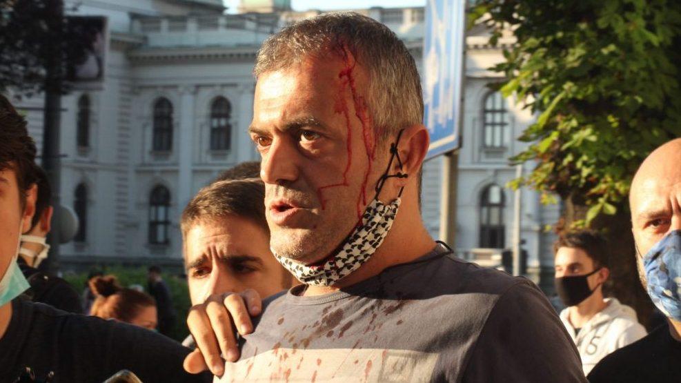 Policija rasterala demonstrante suzavcima i oklopnim vozilima iz centra Beograda (VIDEO, FOTO) 47