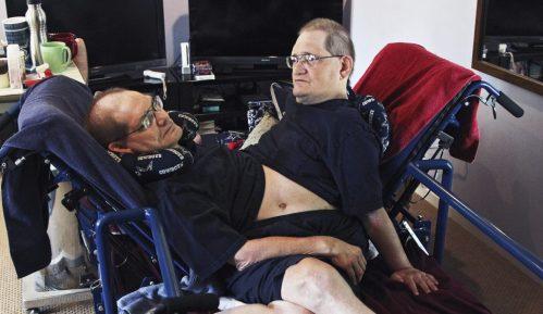 Sijamski blizanci s najdužim životnim vekom umrli u 69. godini 21