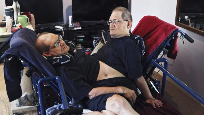 Sijamski blizanci s najdužim životnim vekom umrli u 69. godini 3