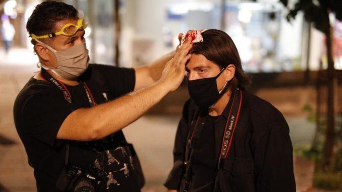 NUNS novinarima delio prsluke kako bi bili bezbedniji na protestima 2
