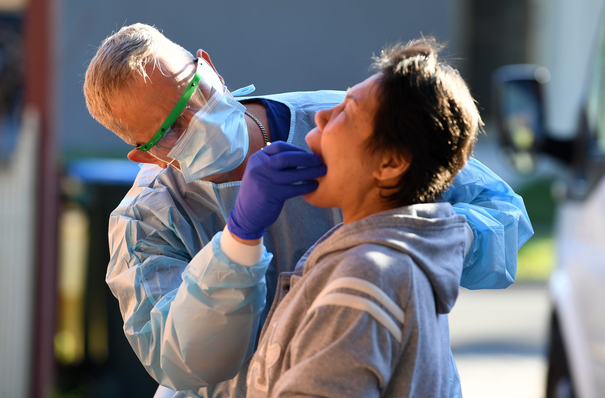 Najveći broj umrlih u danu - 13, još 299 obolelih i ukupno 110 na respiratoru 1