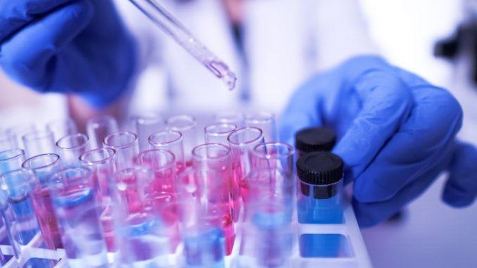 "Kućni testovi na antitela na korona virus ""obmana i rizik za ljude"" 3"