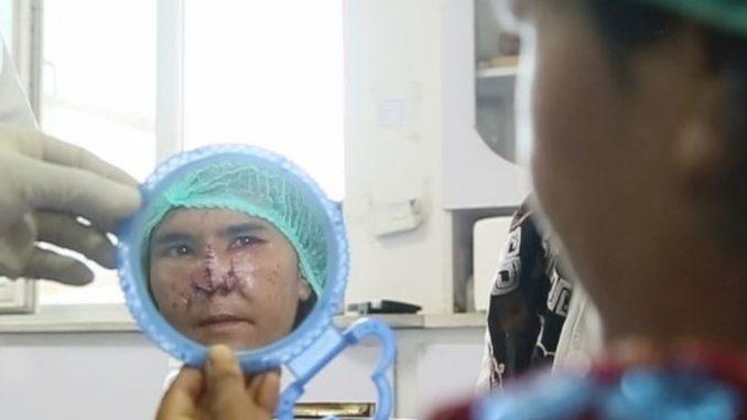 Avganistan, žene i porodično nasilje: Zarki je muž odsekao nos, a hirurg je besplatno operisao 4