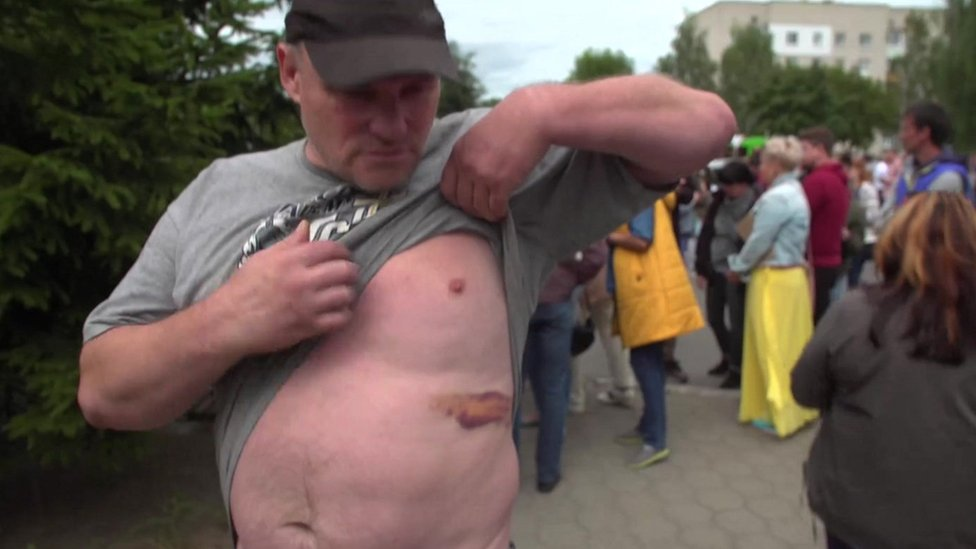 Man shows BBC his bruising outside Okrestina centre