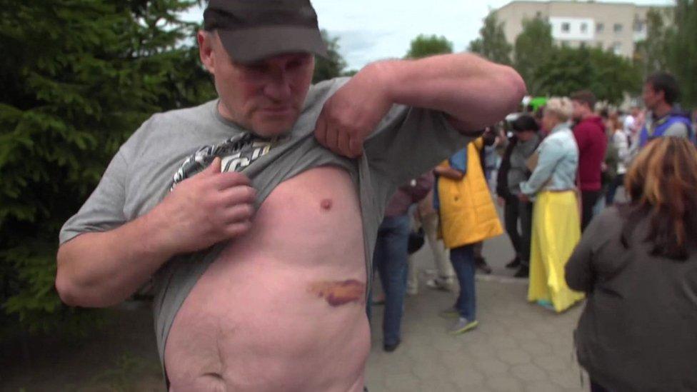 Man shows BBC his bruising outside Okrestina centre