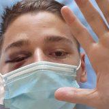 Napadnuti aktivista poručio posle operacije: Svaki građanin je žrtva Vučićevog režima 10