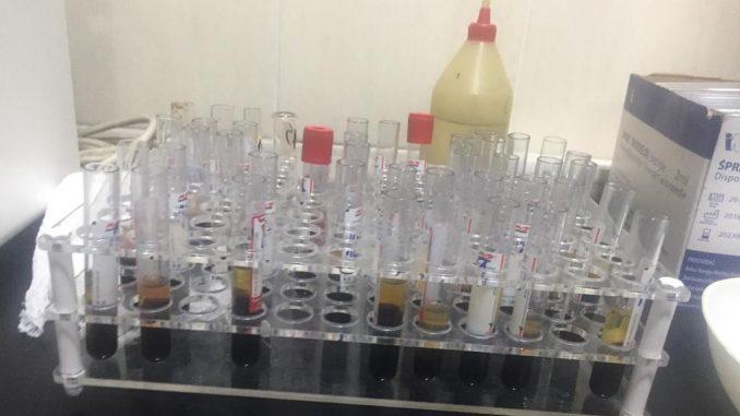Novi slučajevi korona virusa u Majdanpeku i Kladovu 5