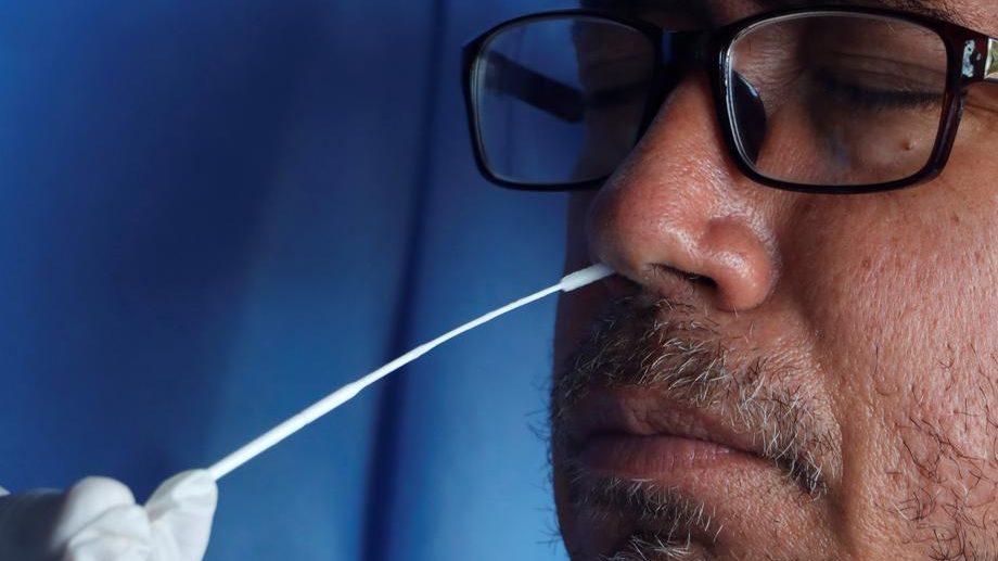 AFP: Preko 1.770.000 preminulih, više od 81 milion zaraženih korona virusom 1
