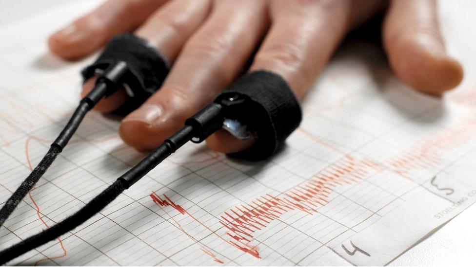 A man's hand shown during a polygraph test