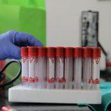 Opština Gadžin Han proglasila vanrednu situaciju zbog epidemije korona virusa 13