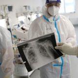Dugotrajne tegobe nakon kovida ima između 40 i 50 odsto pacijenata 10