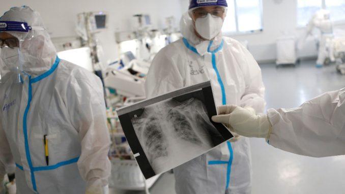Dugotrajne tegobe nakon kovida ima između 40 i 50 odsto pacijenata 5