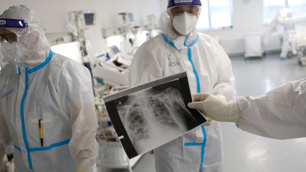 Dugotrajne tegobe nakon kovida ima između 40 i 50 odsto pacijenata 1