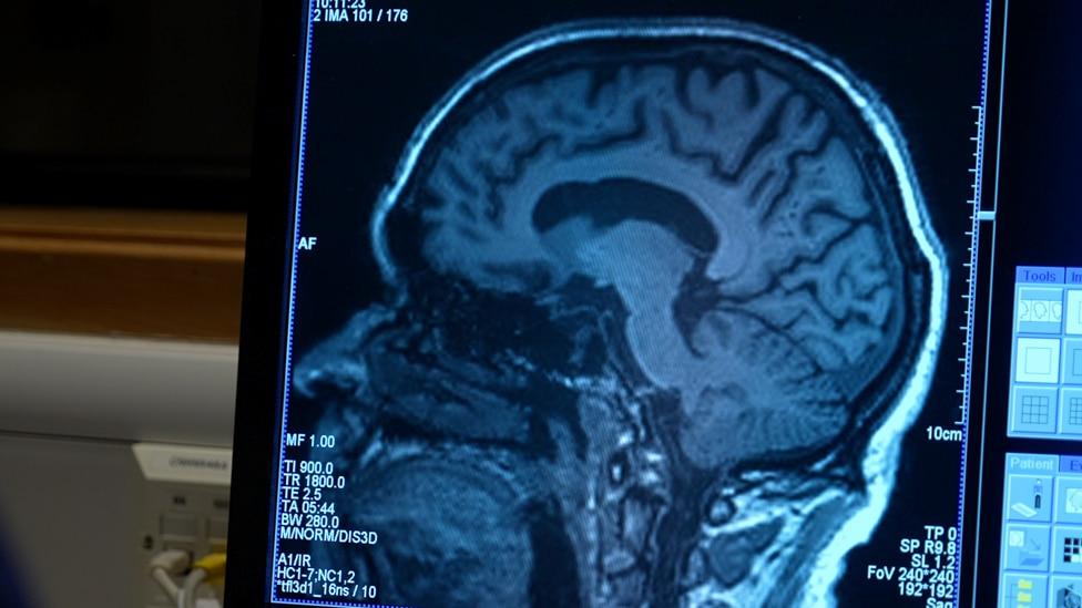 Aldov mozak je redovno skeniran kako bi se videli efekti adukanumaba.