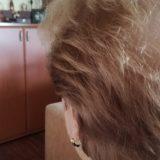 """Korona virus i opadanje kose: """"Samo da ne oćelavim i ne nosim periku"""" 9"""