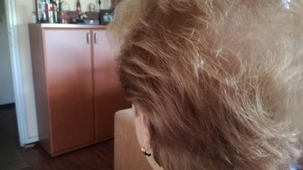 """Korona virus i opadanje kose: """"Samo da ne oćelavim i ne nosim periku"""" 15"""