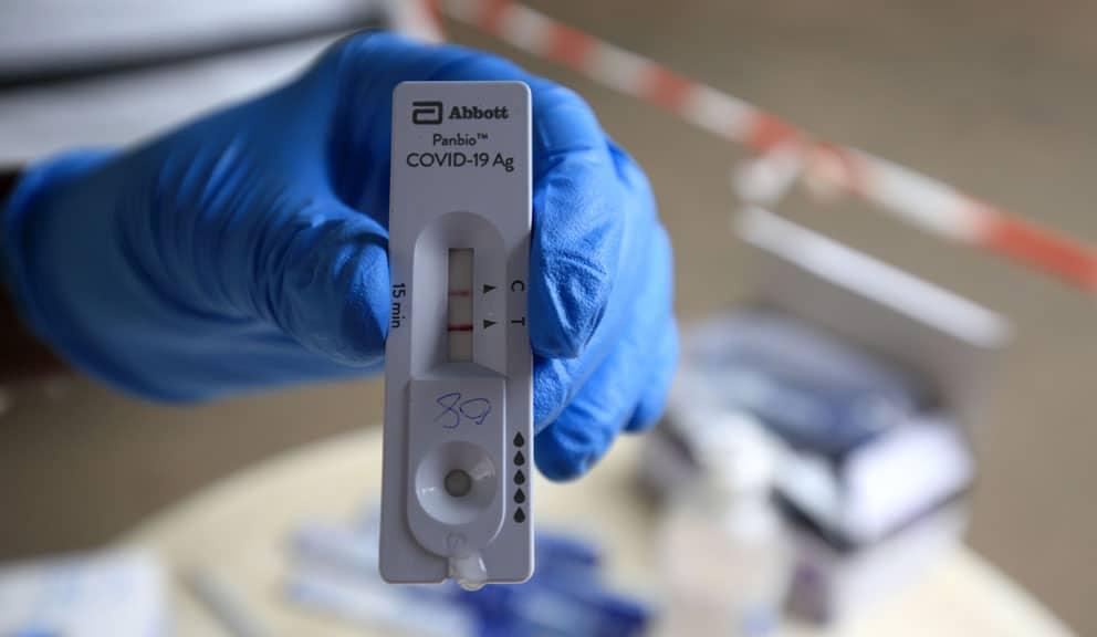 U svetu od korona virusa umrlo više od 4,8 miliona ljudi 1