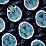 "Kriminal i psihologija: ""Drugi čovek postati nećete - kako oštećenja mozga dovode do zločinačkog ponašanja 12"