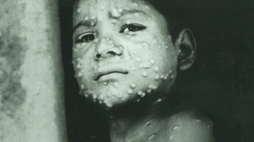 Historic picture of a child with measles